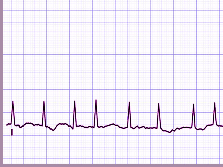 Cardiology Rhythm PPT templates