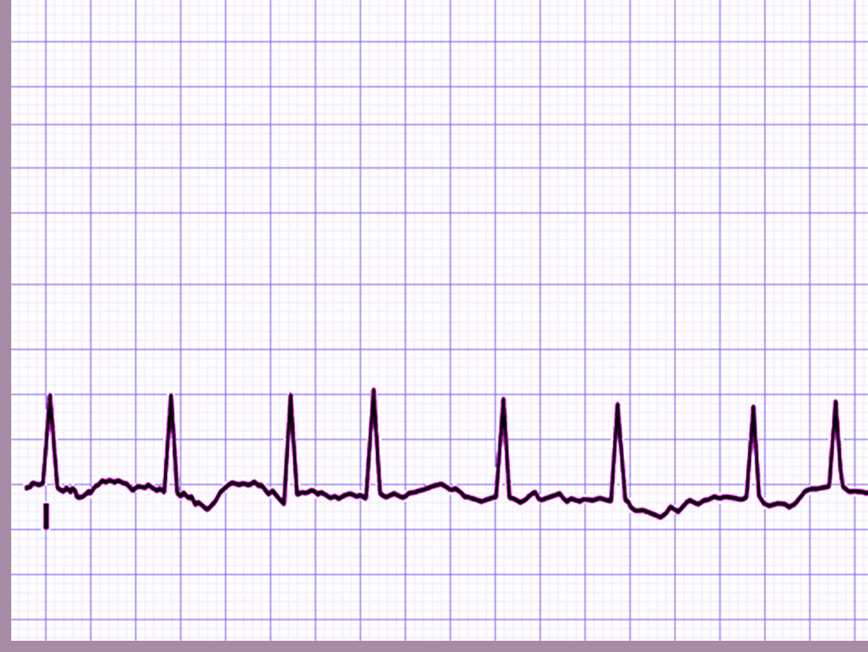 Cardiology Rhythm PPT Backgrounds